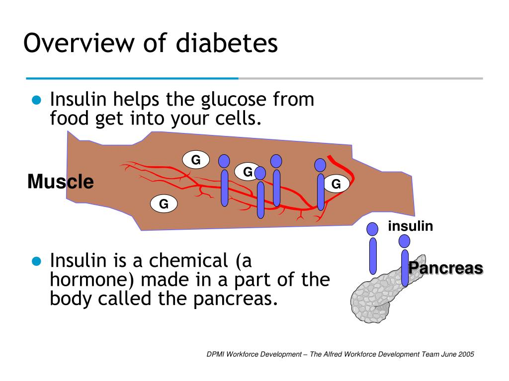 Overview of diabetes