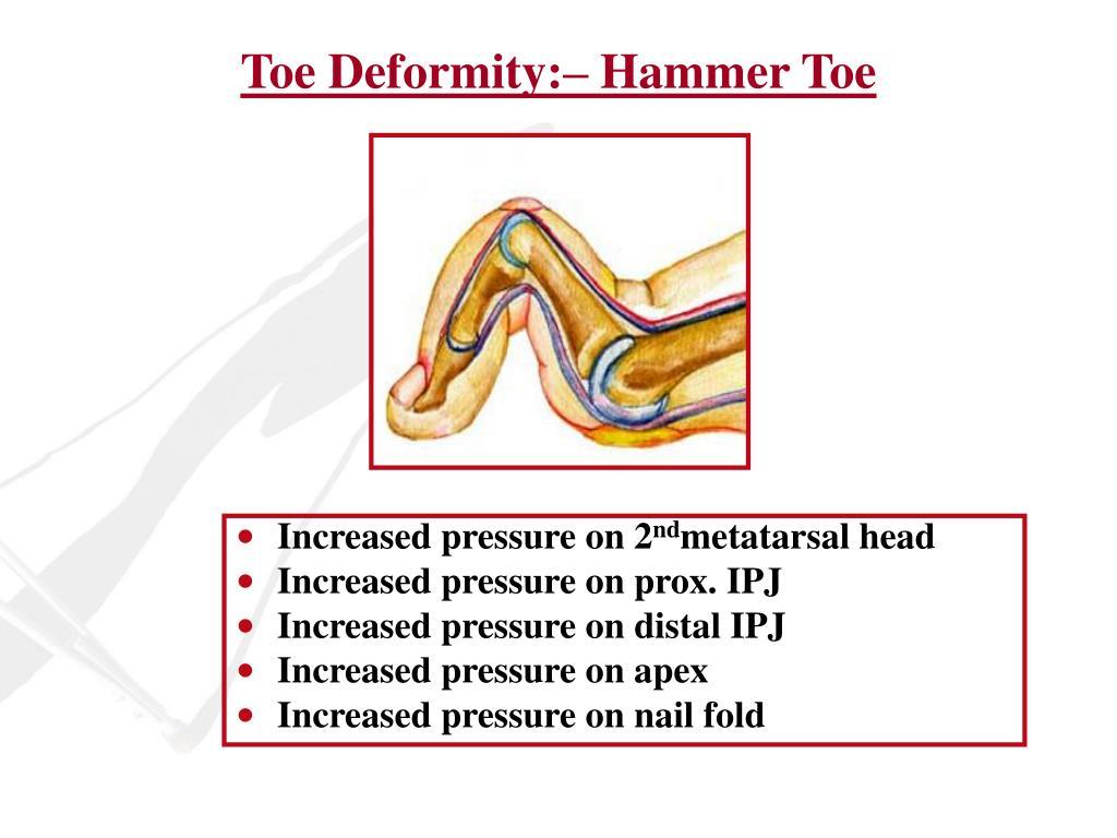 Toe Deformity:– Hammer Toe