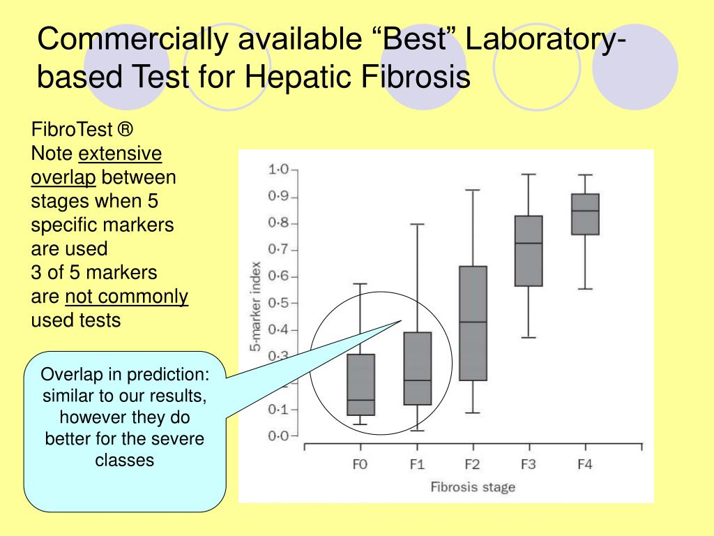 "Commercially available ""Best"" Laboratory-based Test for Hepatic Fibrosis"