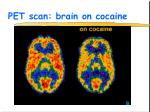 pet scan brain on cocaine