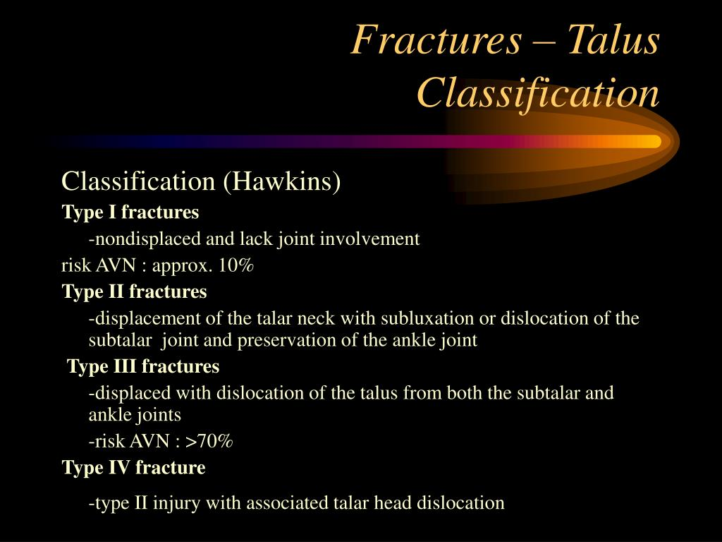 Fractures – Talus