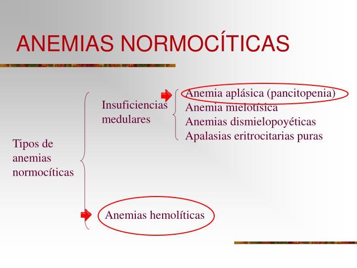 Anemias normoc ticas2