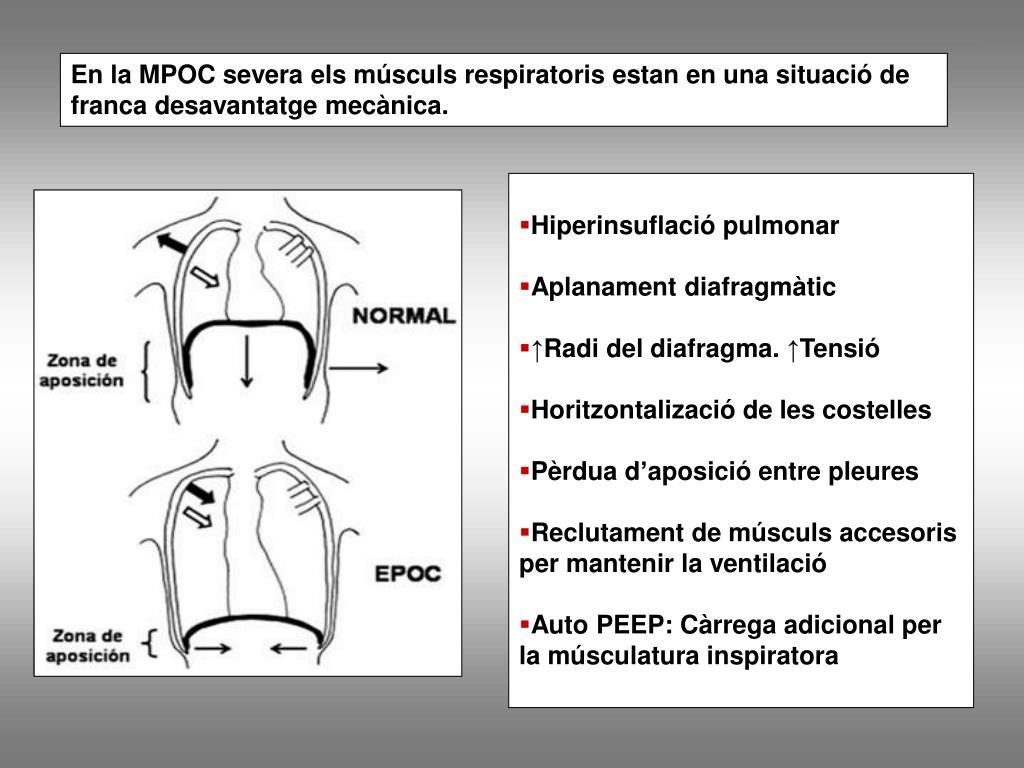 En la MPOC severa els músculs respiratoris estan en una situació de franca desavantatge mecànica.