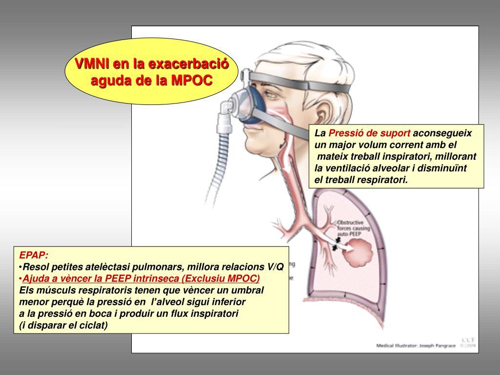 VMNI en la exacerbació