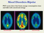 mood disorders bipolar