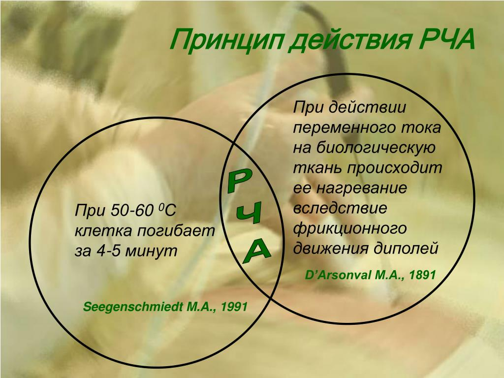 Принцип действия РЧА