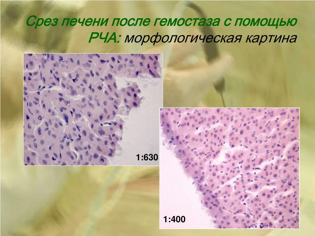 Срез печени после гемостаза с помощью РЧА: