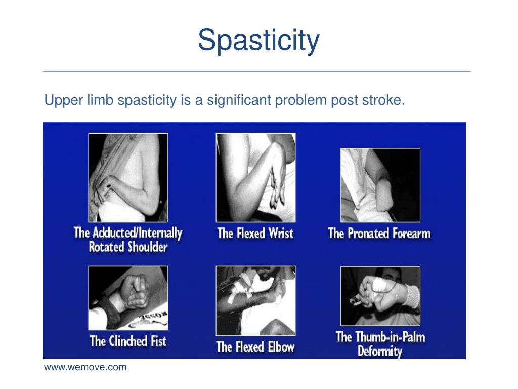 PPT - Spasticity and the Botulinum Toxin for the Upper ...