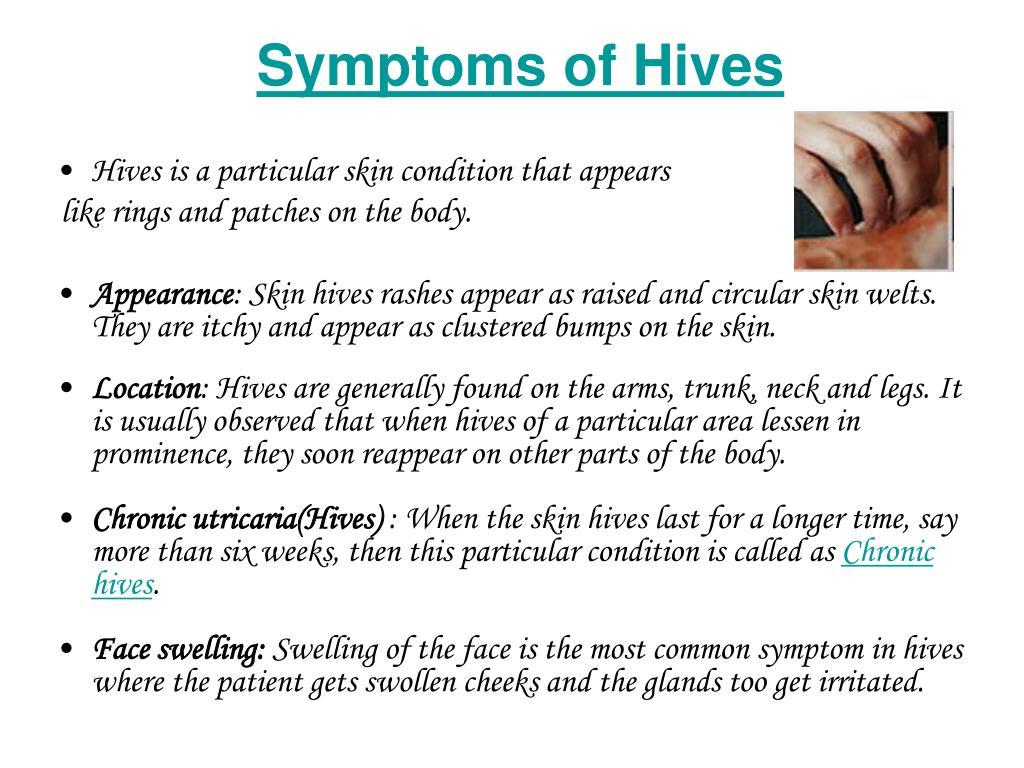 Symptoms of Hives