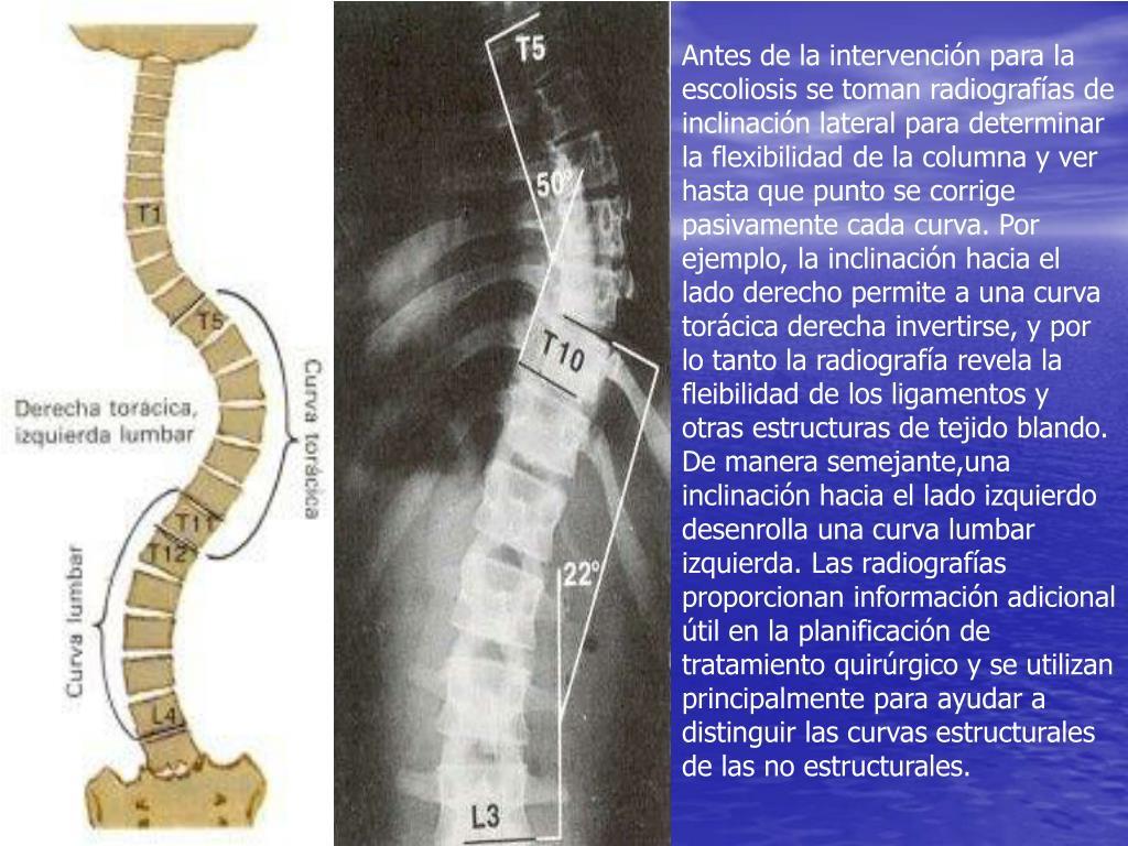 Antes de la intervención para la escoliosis se toman radiografías de inclinación lateral para determinar la flexibilidad de la columna y ver hasta que punto se corrige pasivamente cada curva. Por ejemplo, la inclinación hacia el lado derecho permite a una curva torácica derecha invertirse, y por lo tanto la radiografía revela la fleibilidad de los ligamentos y otras estructuras de tejido blando. De manera semejante,una inclinación hacia el lado izquierdo desenrolla una curva lumbar izquierda. Las radiografías proporcionan información adicional útil en la planificación de tratamiento quirúrgico y se utilizan principalmente para ayudar a distinguir las curvas estructurales de las no estructurales.