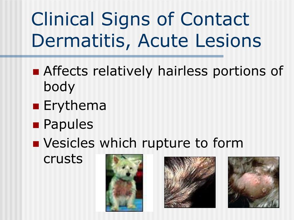 Clinical Signs of Contact Dermatitis, Acute Lesions