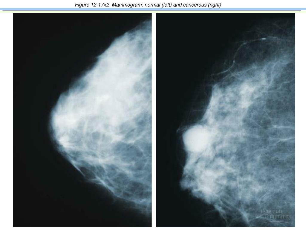 Figure 12-17x2  Mammogram: normal (left) and cancerous (right)