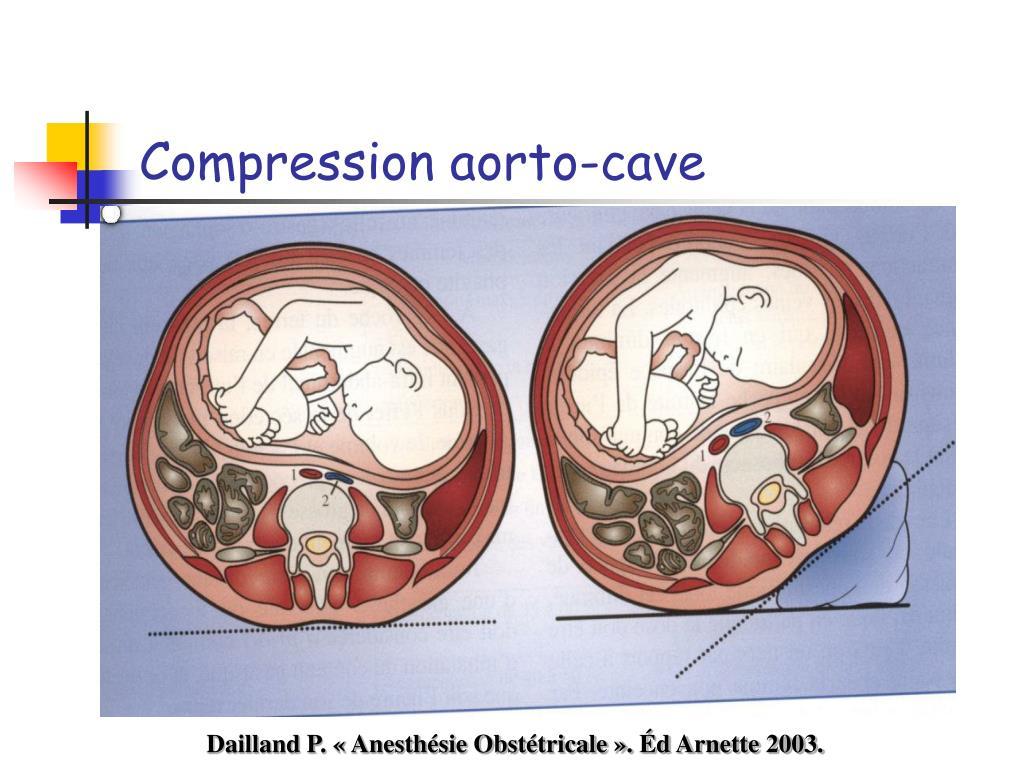 Compression aorto-cave