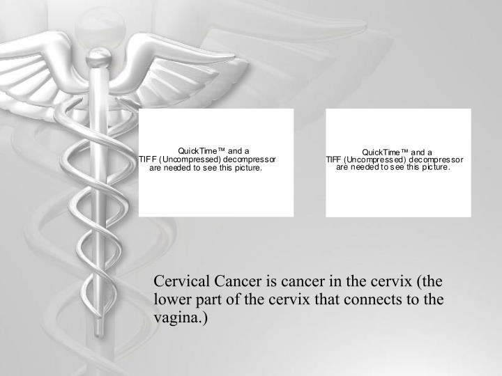 Cervical Cancer is cancer in the cervix (the lower part of the cervix that connects to the vagina.)...