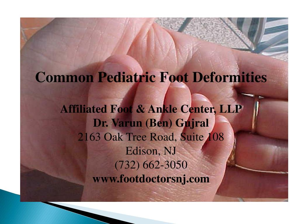 Ppt Common Pediatric Foot Deformities Affiliated Foot Ankle