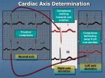 cardiac axis determination