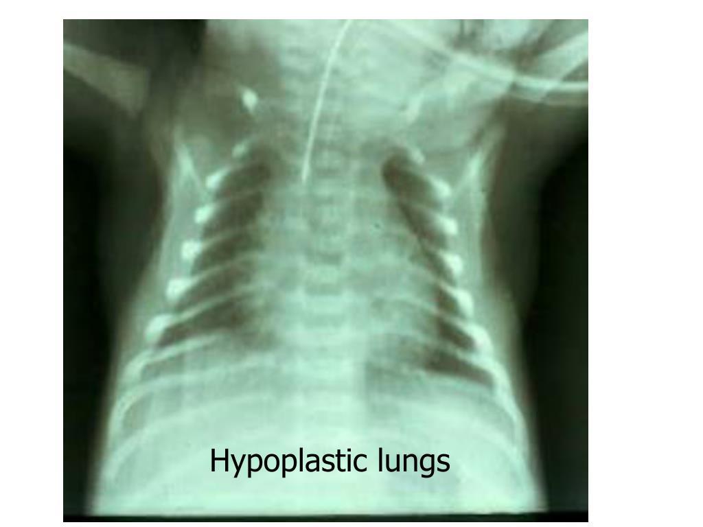 Hypoplastic lungs