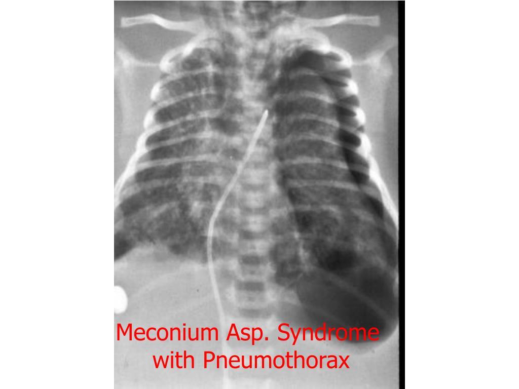 Meconium Asp. Syndrome