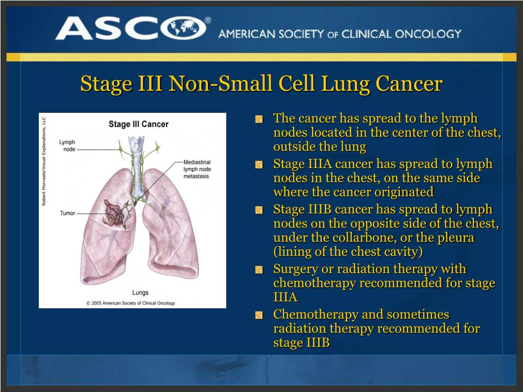 Stage III Non-Small Cell Lung Cancer