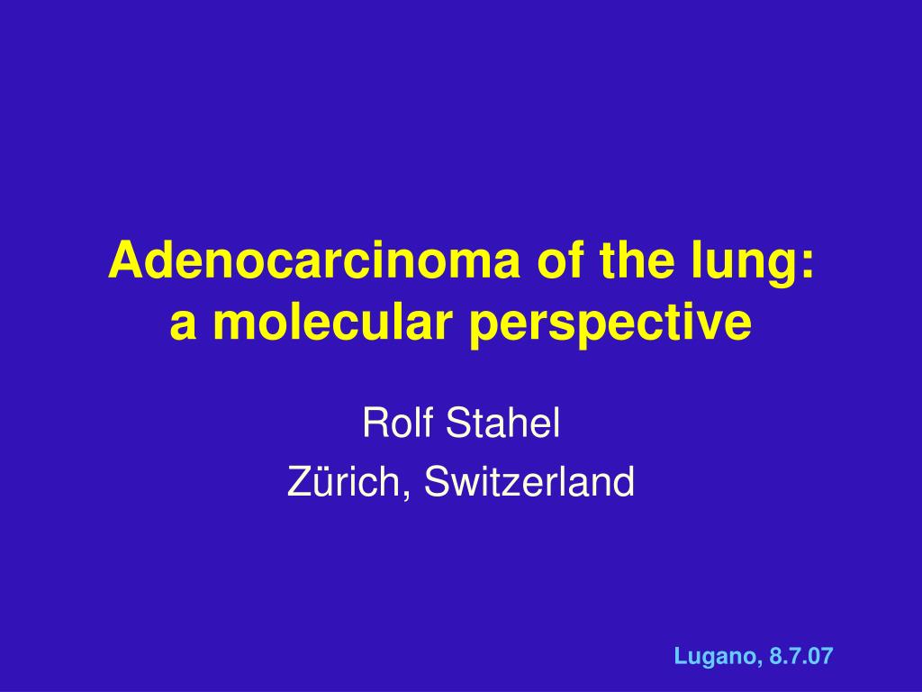 adenocarcinoma of the lung a molecular perspective l.