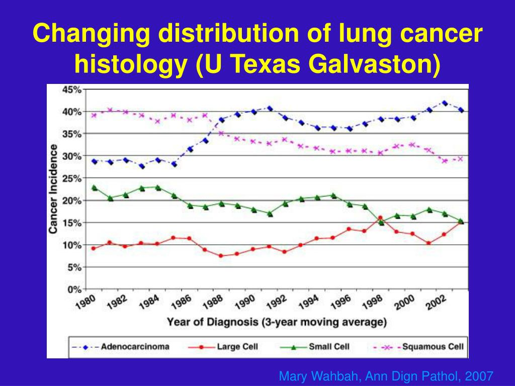 Changing distribution of lung cancer histology (U Texas Galvaston)