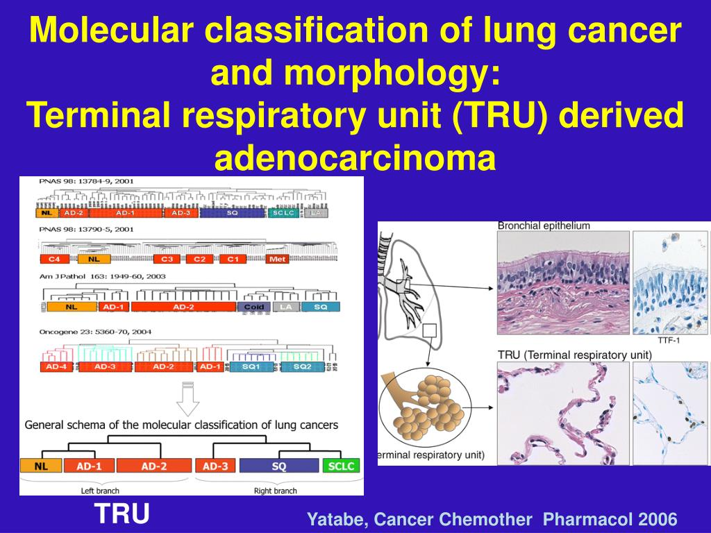 Molecular classification of lung cancer and morphology: