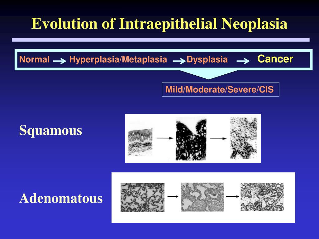 Evolution of Intraepithelial Neoplasia