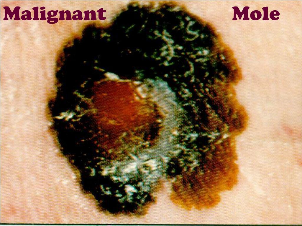 Malignant                         Mole