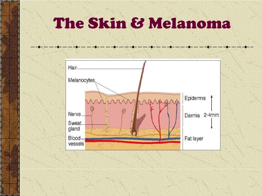 The Skin & Melanoma