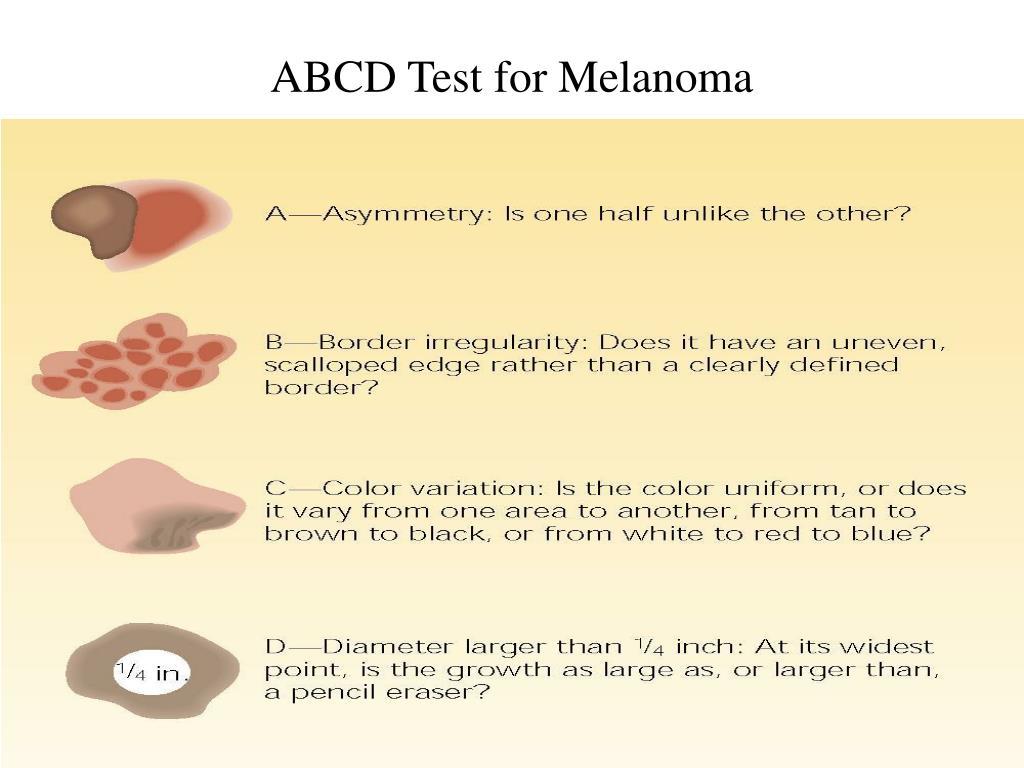 ABCD Test for Melanoma