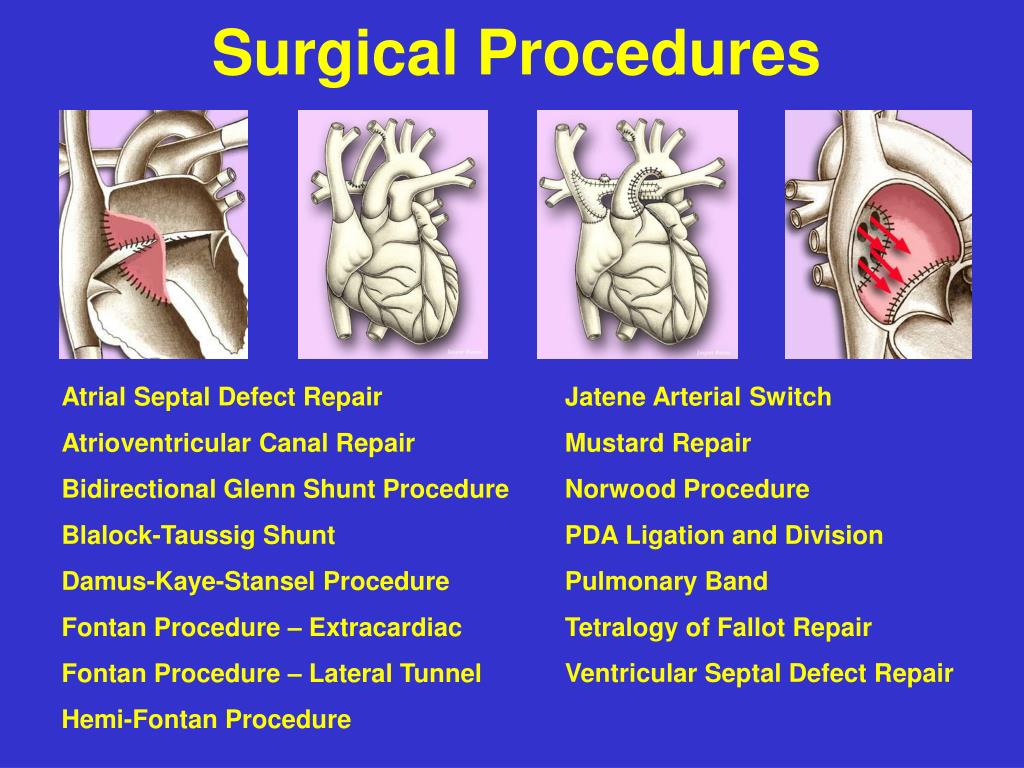 Ppt Surgical Procedures Powerpoint Presentation Free Download Id 640635