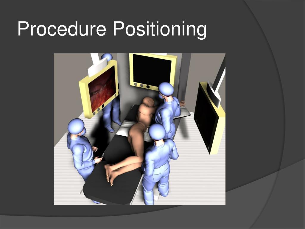 Procedure Positioning