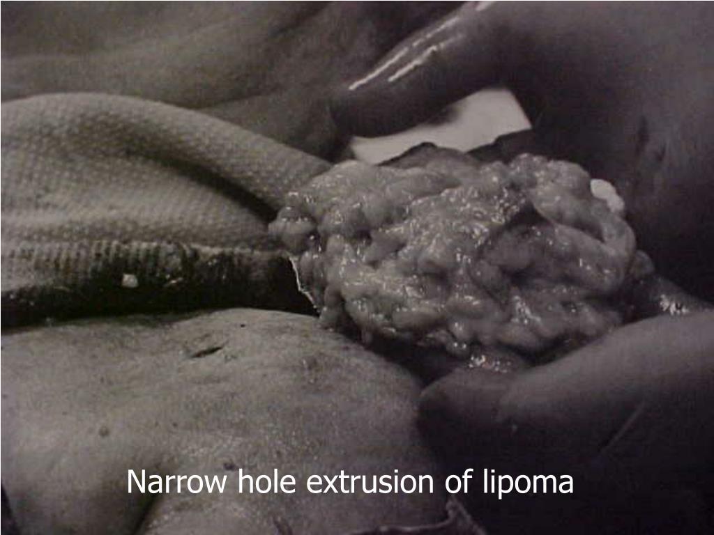Narrow hole extrusion of lipoma