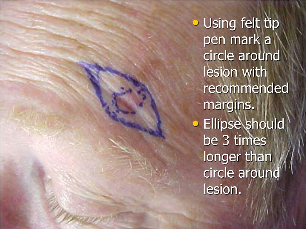 Using felt tip pen mark a circle around lesion with recommendedmargins.