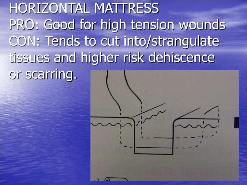 HORIZONTAL MATTRESS