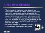 if you have stitches