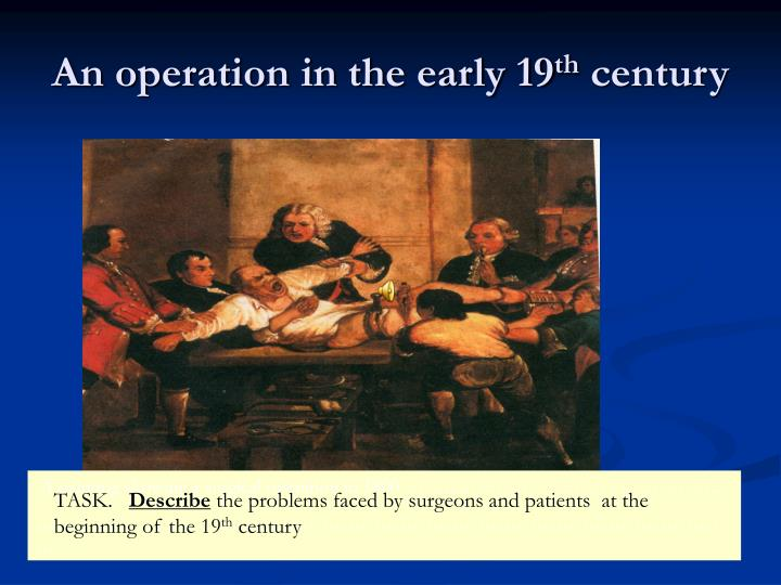 An operation in the early 19 th century
