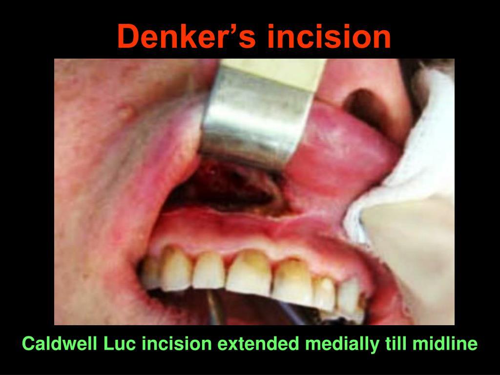 Denker's incision