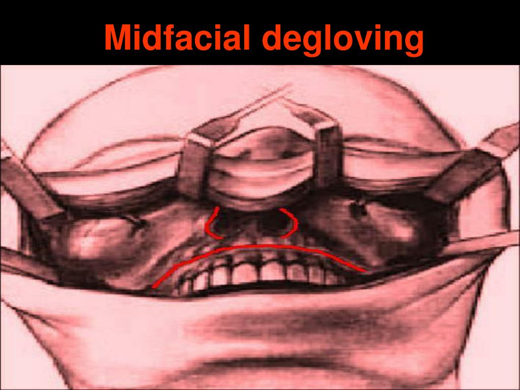 Midfacial degloving
