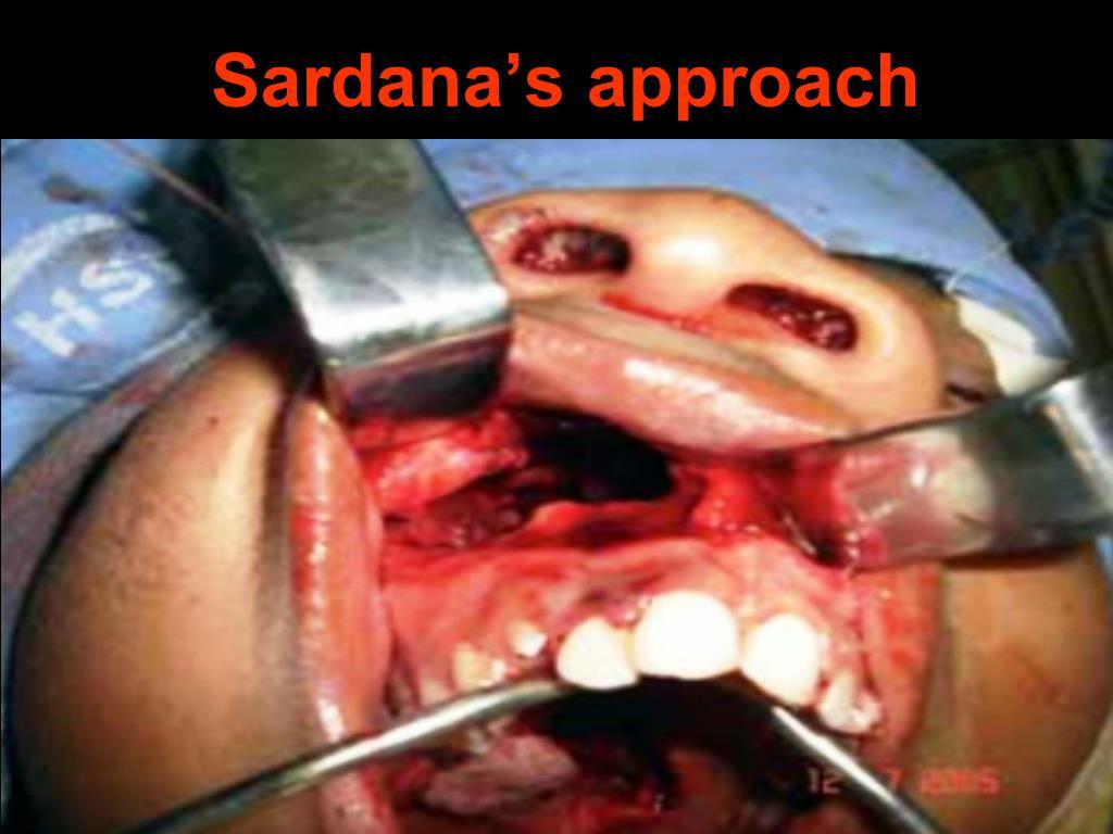 Sardana's approach