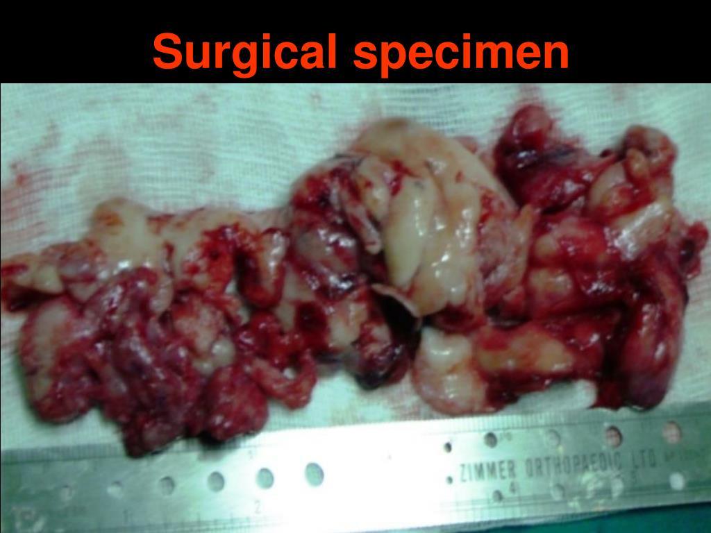 Surgical specimen
