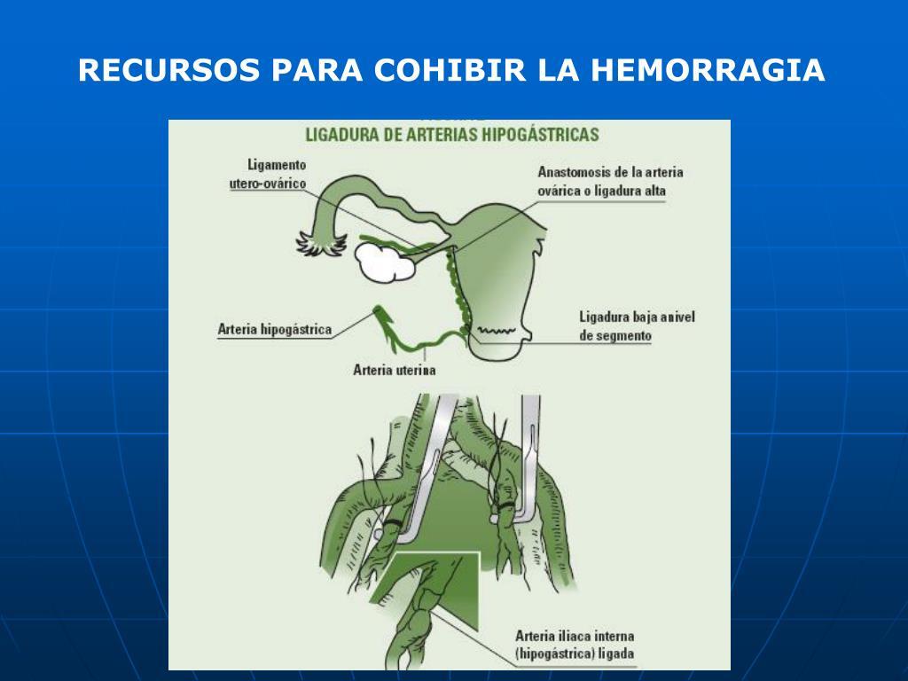 RECURSOS PARA COHIBIR LA HEMORRAGIA