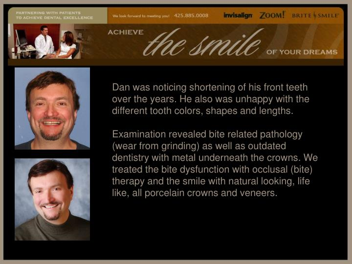 Dan was noticing shortening of his front teeth over the years. He also was unhappy with the different tooth colors, shapes and lengths.