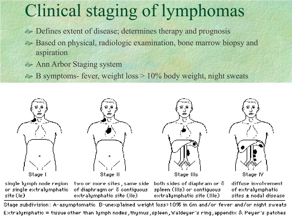 Clinical staging of lymphomas