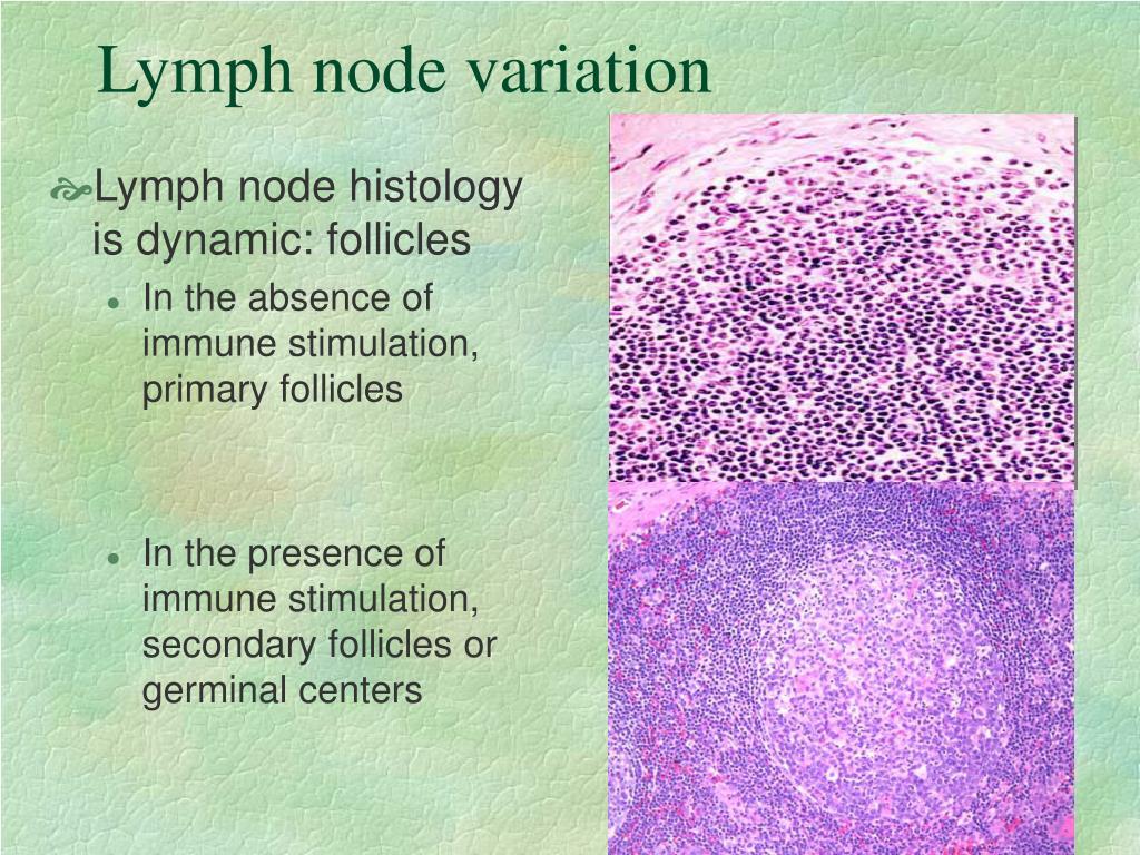 Lymph node variation