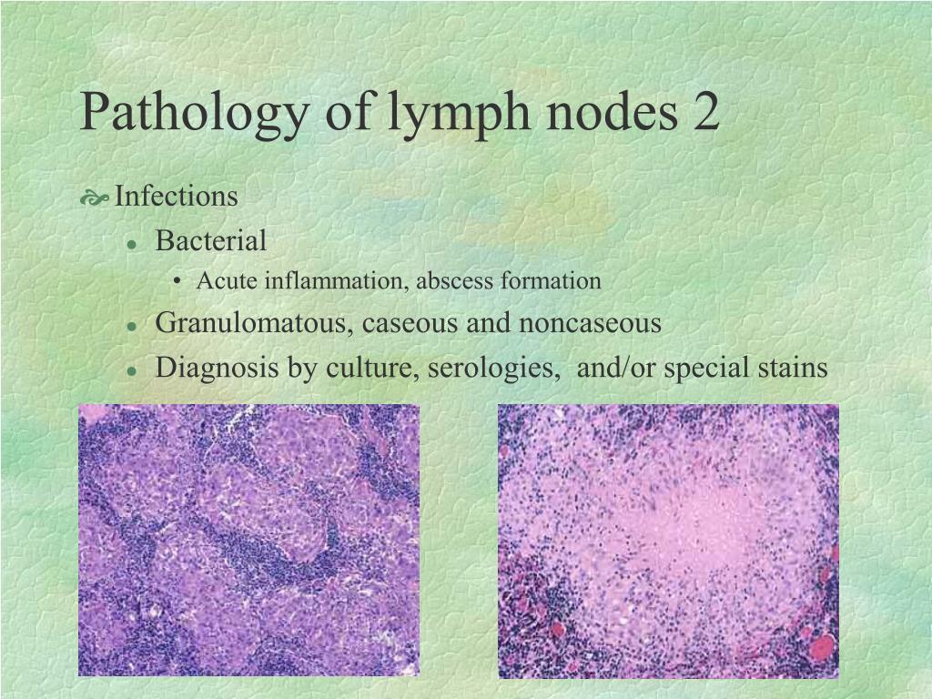 Pathology of lymph nodes 2