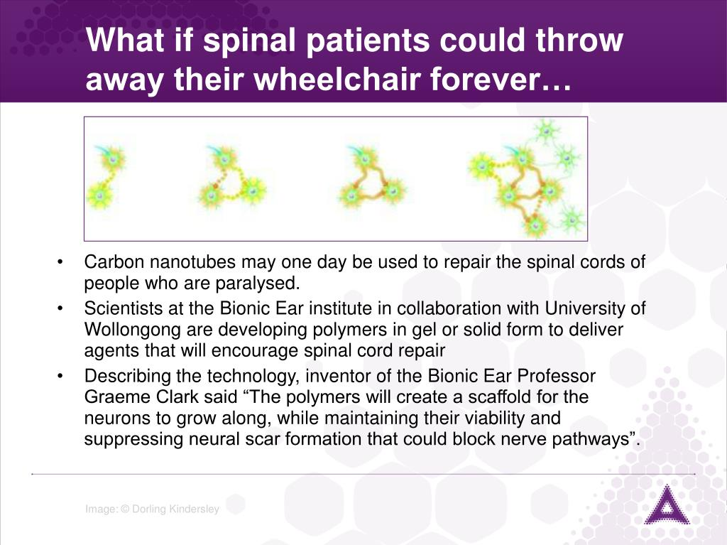What if spinal patients could throw away their wheelchair forever…