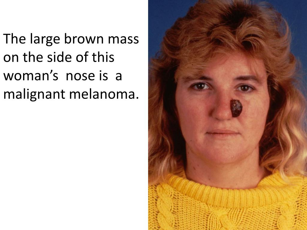 The large brown mass on the side of this woman's  nose is  a malignant melanoma.