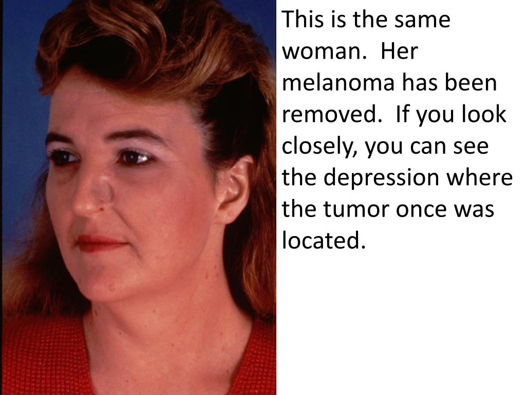 This is the same woman.  Her melanoma has been removed.  If you look closely, you can see the depression where the tumor once was located.