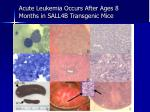 acute leukemia occurs after ages 8 months in sall4b transgenic mice